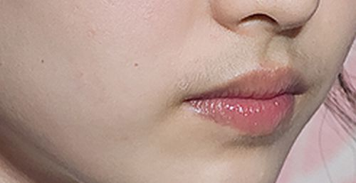 women facial peach fuzz jpg 853x1280
